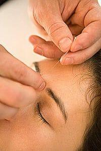 Akupunktur behandling mod blodpropp i øyet
