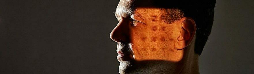 Grøn stær Glaucom kan behandles med succes hos Boel Akupunktur