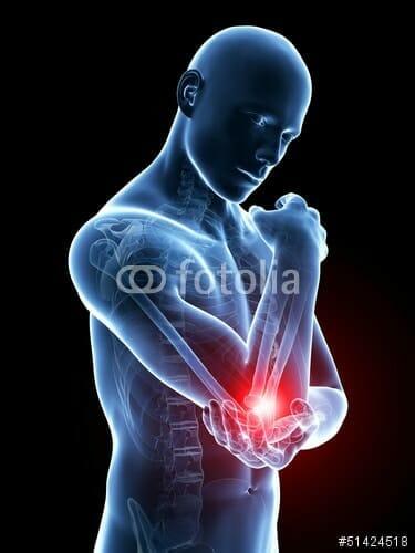 En tennisalbue kan være frygtelig smertefuld