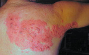 behandling herpes zoster